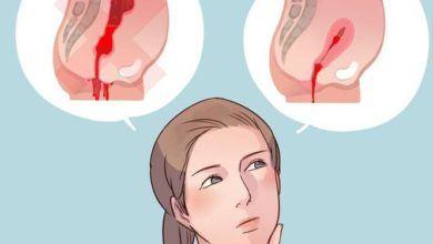 Как отличить месячные от кровотечения