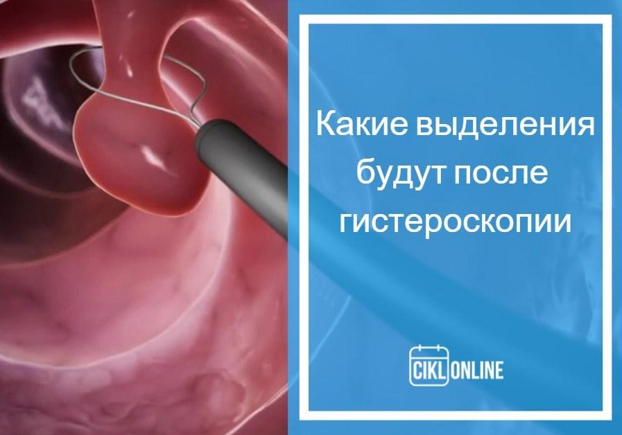 выделения после гистерорезектоскопии