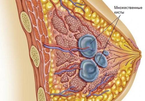 Мастопатия - одна из причин боли в сосках